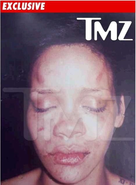 Rihanna Picture Taken By Los Angeles Police
